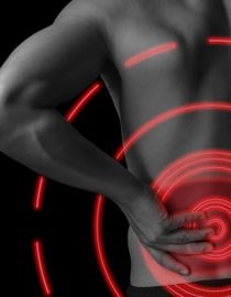 Back Pain and Cancer