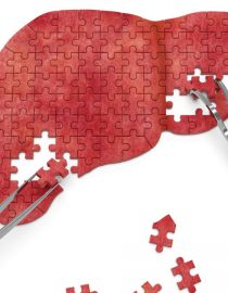 What Causes Liver Cancer?