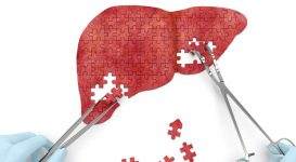 Pinpointing What Causes Liver Cancer for Better Prevention